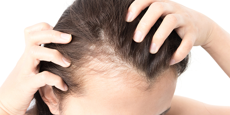 HAIR FALL AND THINNING SOLUTIONS